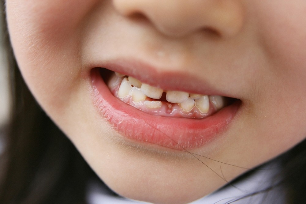 'Diş ayrıklığı 16 yaş sonrasında anormal'