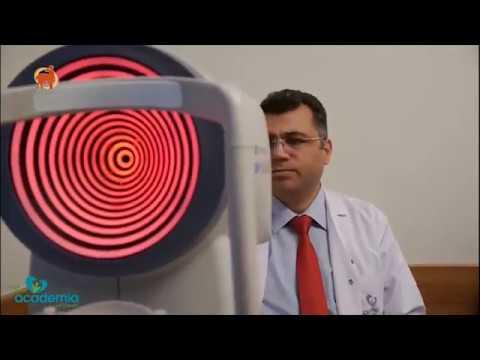 Excimer Lazer Tedavisi... lazer ameliyatını canlı canlı izleyin...